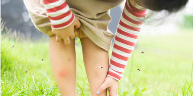 A child scratching mosquito bites on their legs.